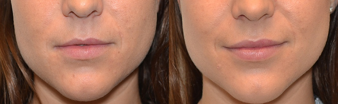 fillers totaal 2 - Injectables
