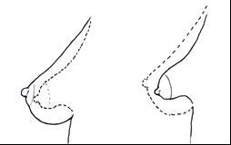 Tubulaire borsten